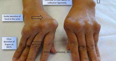 Berurusan Dengan Gejala Polymyalgia Cara lain untuk menghindari artritis