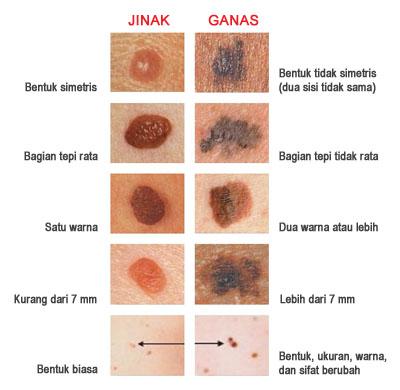 Mencari Gambar Kanker Kulit Online kulit     yang terlihat sangat
